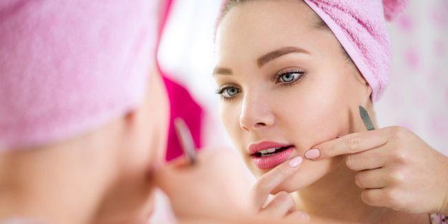10 Причин появи прищів на обличчі