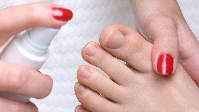 спрей від запаху ніг