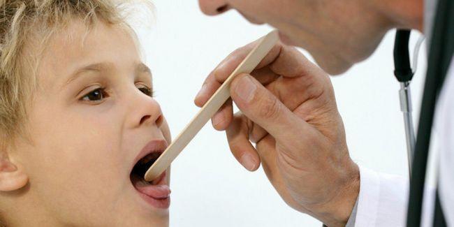 Як і чим вилікувати мононуклеоз у дітей