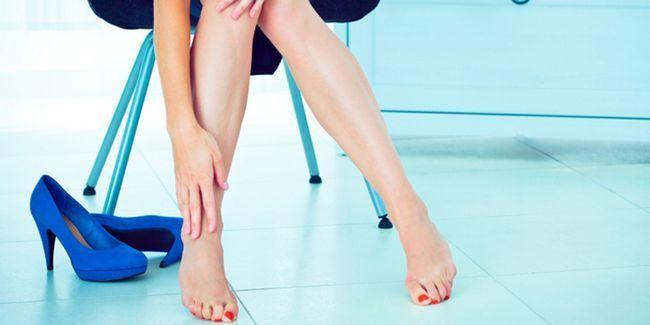 Як лікувати варикоз на ногах у жінок