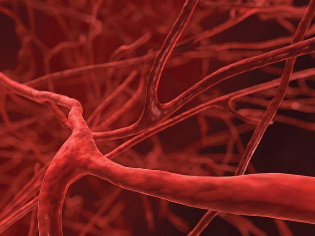 Як очистити кровоносні судини за допомогою ліків