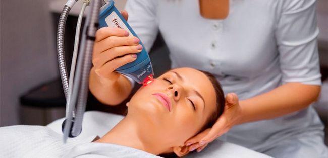 видалення плям на обличчі лазером