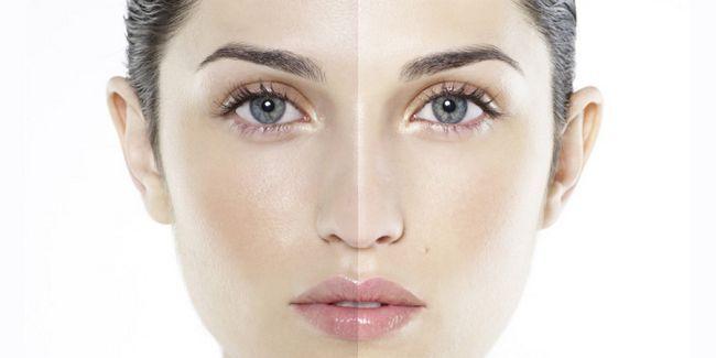 Як поліпшити колір шкіри обличчя: 7 вірних способів