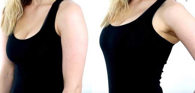Як збільшити груди без силікону, уколів і болю?
