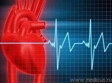 Лікувальне харчування. Дієта після інфаркту міокарда (дієти при хворобах)