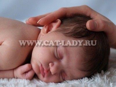 Мармурова шкіра у новонароджених: причини