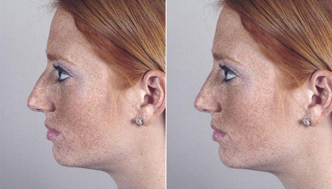 фото корекції носа філлерамі