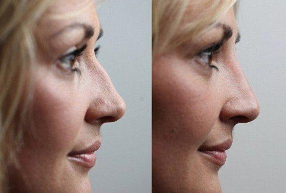 корекція горбинки носа
