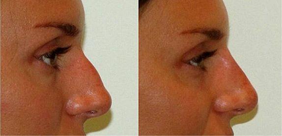 зміна форми носа