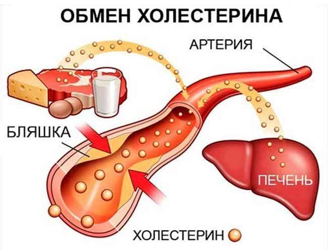 Небезпечний холестерин: норма і як знизити холестерин без ліків