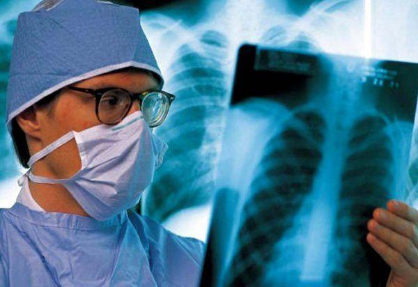 Основні методи і препарати для профілактики туберкульозу