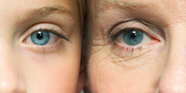 Профілактика зморшок на обличчі: скажи «ні» віковим змінам