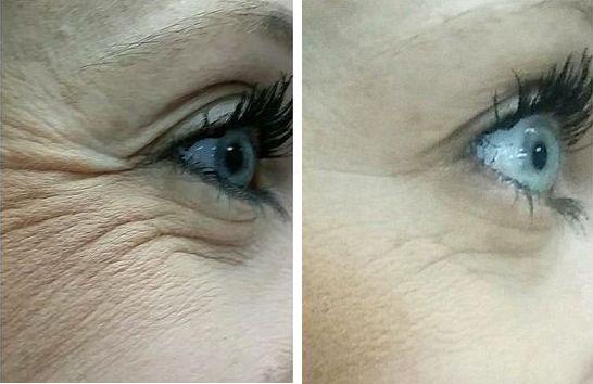 До і Після застосування сироватки