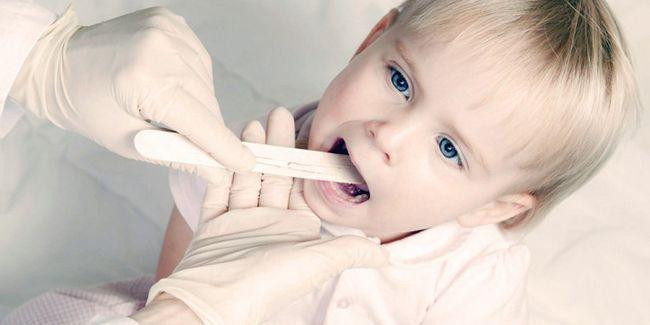 Симптоми мононуклеозу у дітей