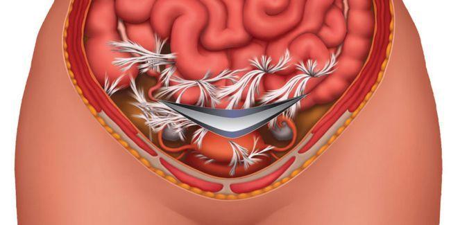 Спайки після кесаревого розтину: симптоми і лікування