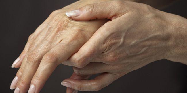 Варикоз на руках: симптоми, причини, лікування