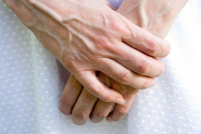 причини варикозу рук